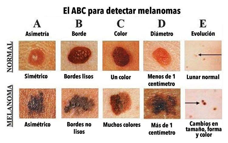 SKINDERMA_CANCER_ABCDE DE LOS LUNARES