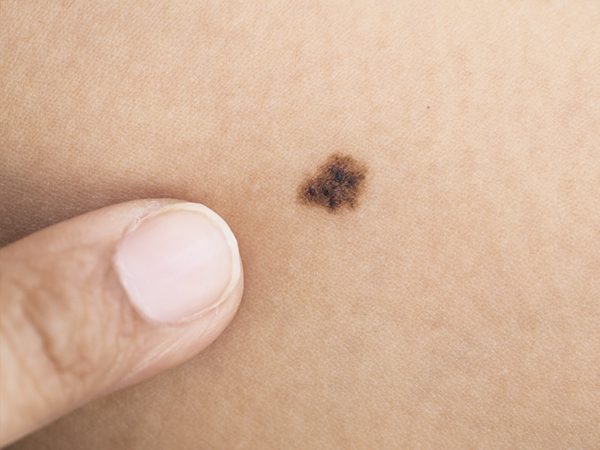 SKINDERMA_CANCER_MELANOMA