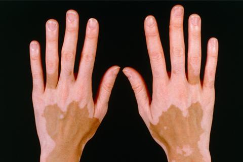 Los medios públicos de las manchas de pigmento después del parto