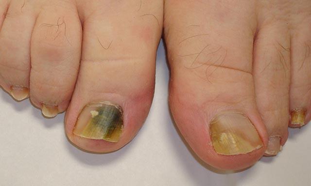 Si ayuda el ungüento terbinafin al hongo de las uñas