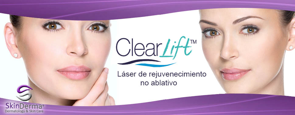 Banner-Clearlift